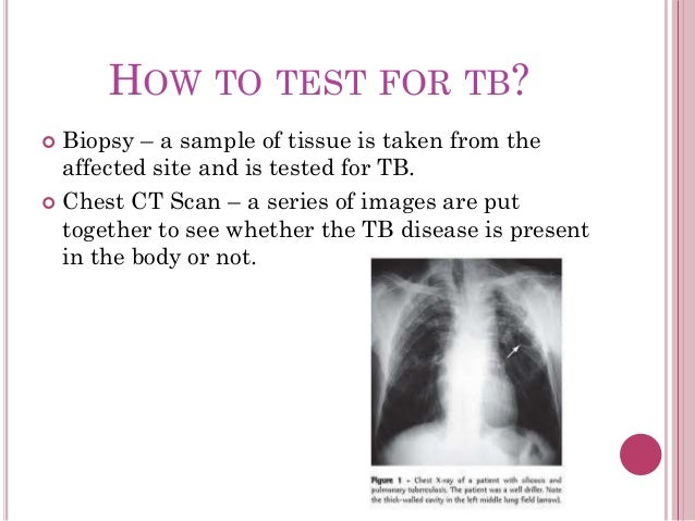 how to tell if your tb test is positive
