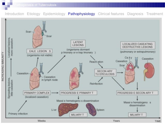 Pathogenesis Of Tuberculosis