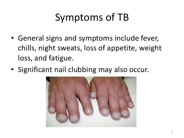 the signs symptoms and treatment of tuberculosis Learn all about tuberculosis, a highly contagious disease that is spread through the air by bacteria tuberculosis can be fatal and can affect anyone in any part of the world, but it is more common among young adults in developing countries find out what causes tuberculosis, as well as how to prevent and treat it.