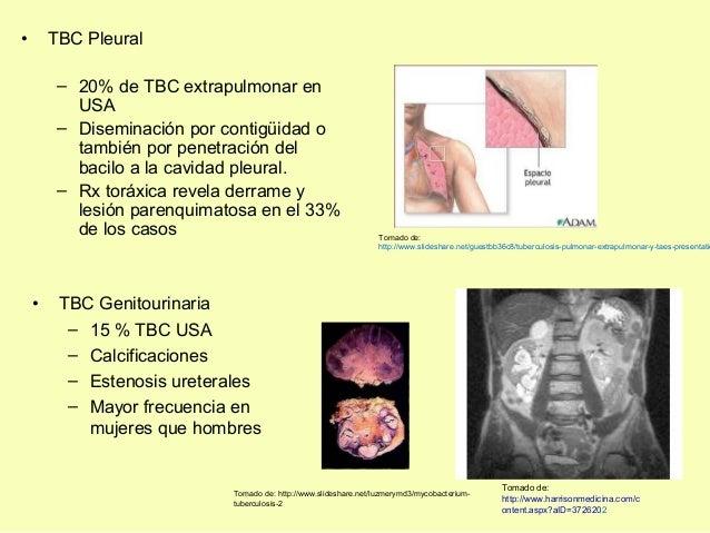 • TBC Genitourinaria– 15 % TBC USA– Calcificaciones– Estenosis ureterales– Mayor frecuencia enmujeres que hombres• TBC Ple...