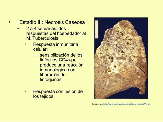 • Estadio III: Necrosis Caseosa– 2 a 4 semanas: dosrespuestas del hospedador alM. Tuberculosis• Respuesta inmunitariacelul...