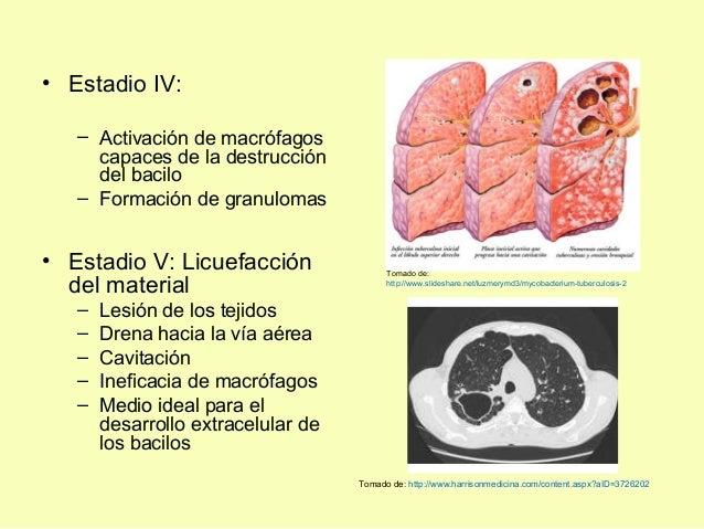 • Estadio IV:– Activación de macrófagoscapaces de la destruccióndel bacilo– Formación de granulomas• Estadio V: Licuefacci...