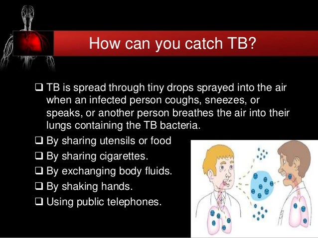 Can Tb Be Spread By Food