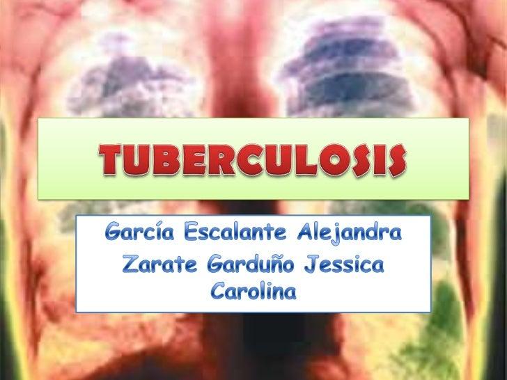 • MICOBACTERIAS• Es un grupo de varias especies que  conforman la familia Mycobacteriaceae.• Se caracterizan por contener ...