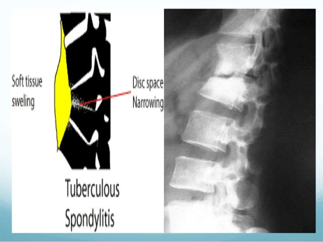 SPONDYLITIS TB EPUB DOWNLOAD