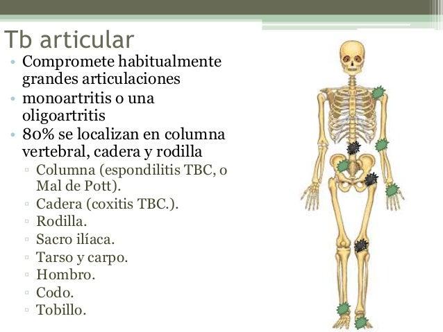 Tuberculosis ósteoarticular