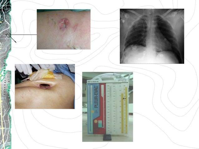RECOMENDACIONESTécnicaConocimiento, posición, indicacionesAsepsia antisepsiaCuraciones día, Bid...Ejercicios respiratorios...