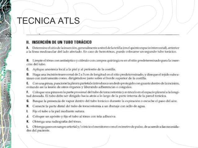 TECNICA ATLS