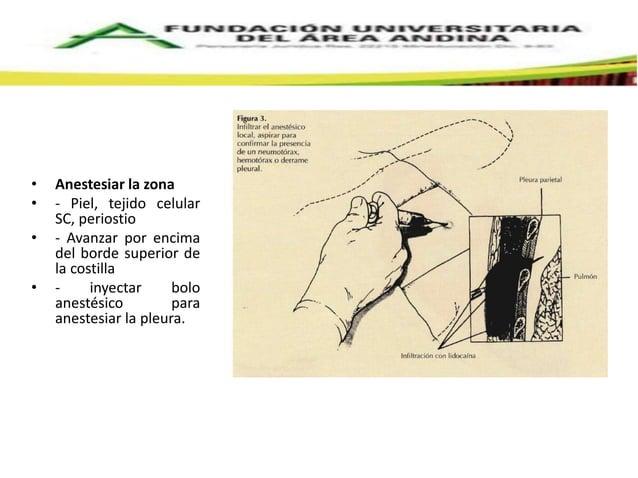 Sangrado y el  hemotórax debido a  la perforación de la  arteria intercostal  Perforación de  vísceras  Perforación de  es...