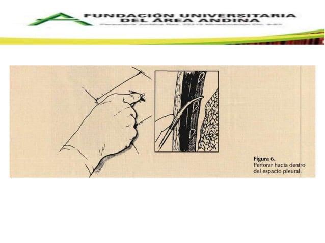 CONECTORES Y TUBO DE  DRENAJE   Conectores: rectos o en forma de Y, drenajes  independientes. Transparentes, de material ...