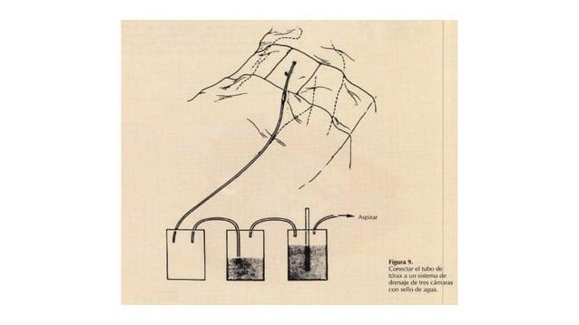 DRENAJE BAJO AGUA SIN SUCCIÓN Dos frascos: Primer frasco (recolector) entre el tubo de tórax y el sello de agua (segundo f...