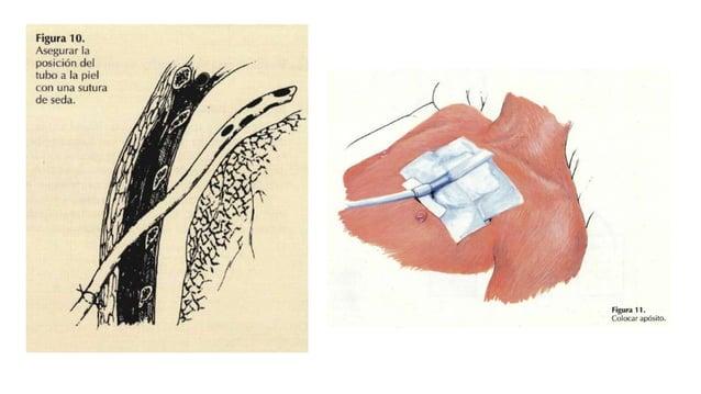 USO DE SUCCIÓN Indicaciones: Falla en expansión pulmonar con tubo en adecuada posición Fuga de aire: pulmón colapsado Susp...
