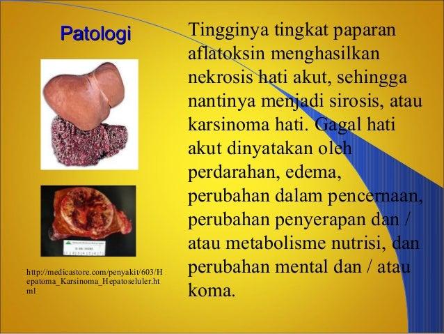 Bahaya Aflatoksin dalam Bahan Makanan