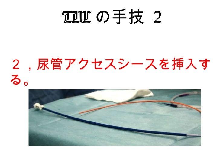 尿路結石 tul経尿道的尿管結石砕石術