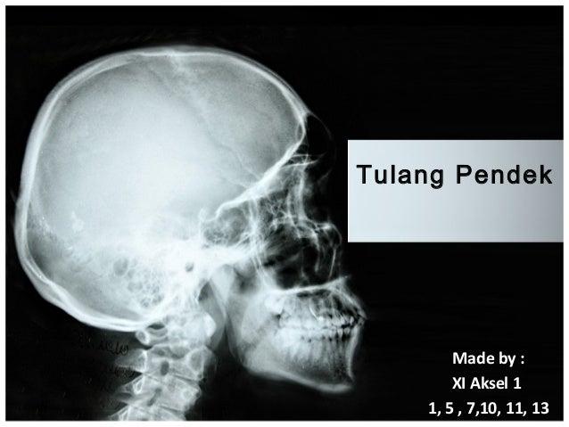 Tulang Pendek        Made by :        XI Aksel 1    1, 5 , 7,10, 11, 13