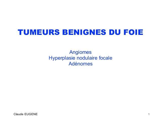 TUMEURS BENIGNES DU FOIE Angiomes Hyperplasie nodulaire focale Adénomes Claude EUGENE 1