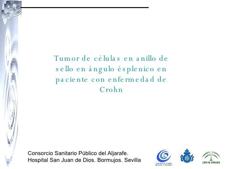 Consorcio Sanitario Público del Aljarafe. Hospital San Juan de Dios. Bormujos. Sevilla Tumor de células en anillo de sello...
