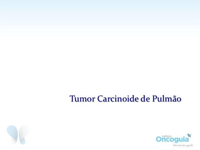 Tumor Carcinoide de Pulmão Slide 2
