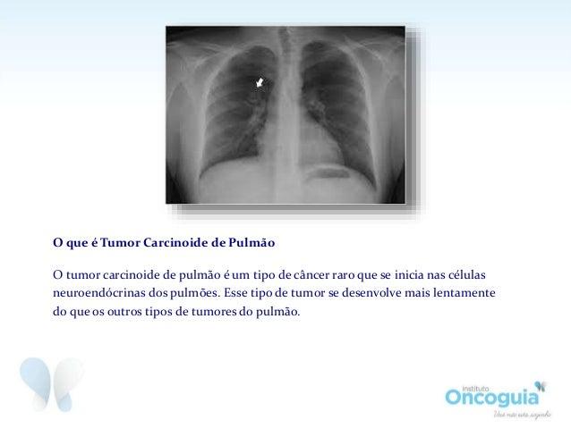 Tumor Carcinoide de Pulmão Slide 3