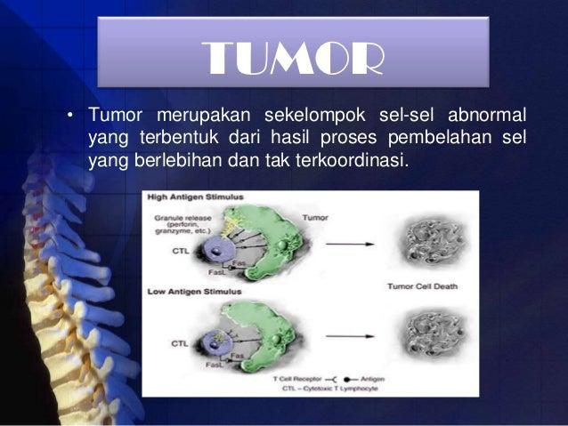 Tumor dan kanker
