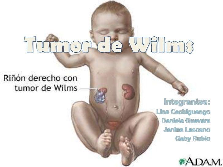 Tumor de Wilms<br />Integrantes:<br />Lina Cachiguango<br />Daniela Guevara<br />Janina Lascano<br />Gaby Rubio<br />
