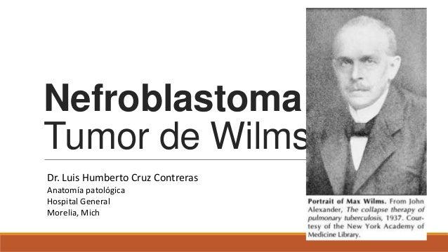 NefroblastomaTumor de WilmsDr. Luis Humberto Cruz ContrerasAnatomía patológicaHospital GeneralMorelia, Mich