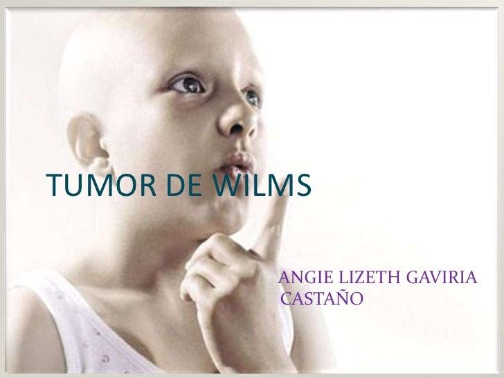 TUMOR DE WILMS<br />ANGIE LIZETH GAVIRIACASTAÑO<br />