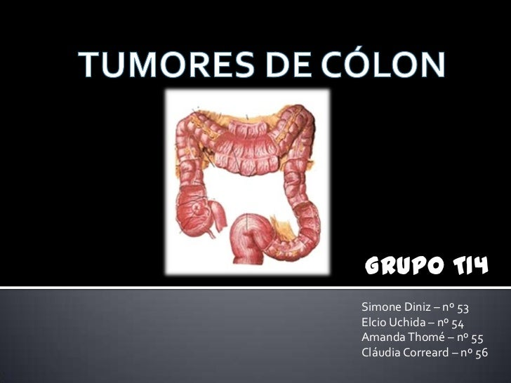 TUMORES DE CÓLON<br />Grupo T14<br />Simone Diniz – nº 53<br />Elcio Uchida – nº 54<br />Amanda Thomé – nº 55<br />Cláudia...