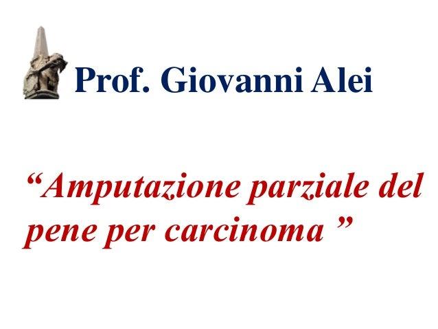 """Prof. Giovanni Alei """"Amputazione parziale del pene per carcinoma """""""
