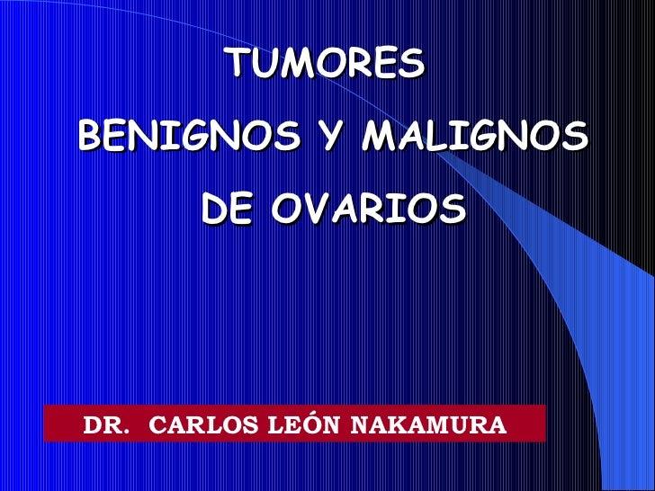 TUMORES  BENIGNOS Y MALIGNOS  DE OVARIOS DR.  CARLOS LEÓN NAKAMURA
