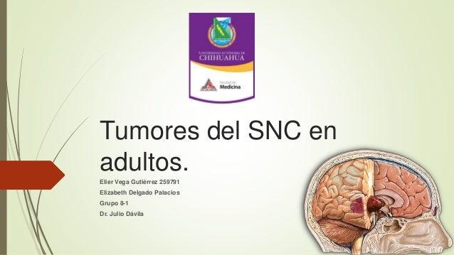 Tumores del SNC en adultos. Elier Vega Gutiérrez 259791 Elizabeth Delgado Palacios Grupo 8-1 Dr. Julio Dávila