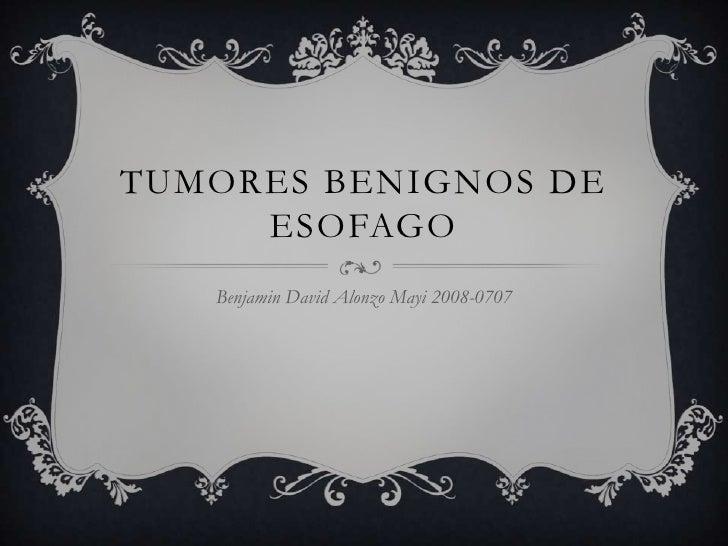 TUMORES BENIGNOS DE     ESOFAGO   Benjamin David Alonzo Mayi 2008-0707