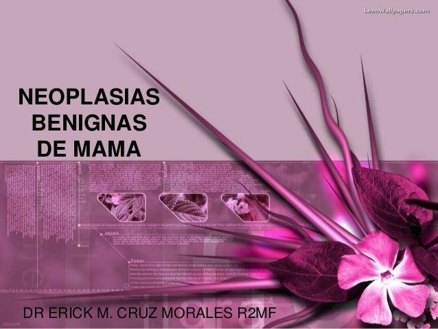 NEOPLASIAS BENIGNAS DE MAMADR ERICK M. CRUZ MORALES R2MF