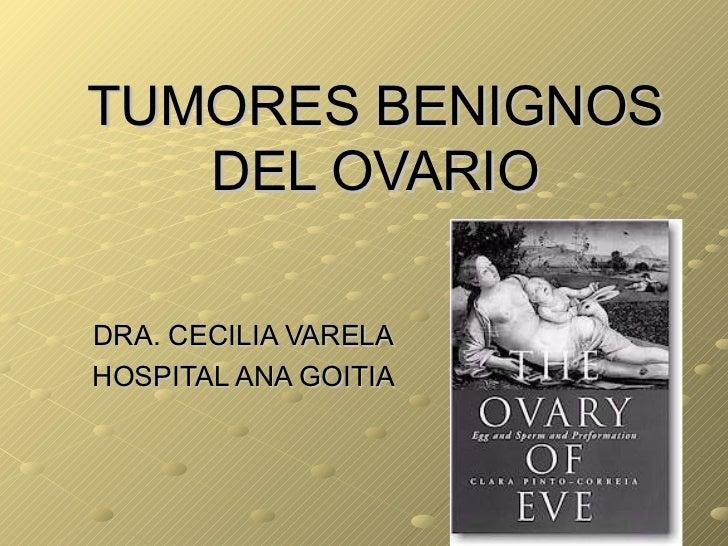 TUMORES BENIGNOS DEL OVARIO DRA. CECILIA VARELA HOSPITAL ANA GOITIA