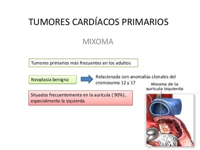 TUMORES CARDÍACOS PRIMARIOS MIXOMA Tumores primarios más frecuentes en los adultos Neoplasia benigna Relacionada con anoma...