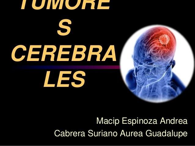 TUMORE S CEREBRA LES Macip Espinoza Andrea Cabrera Suriano Aurea Guadalupe