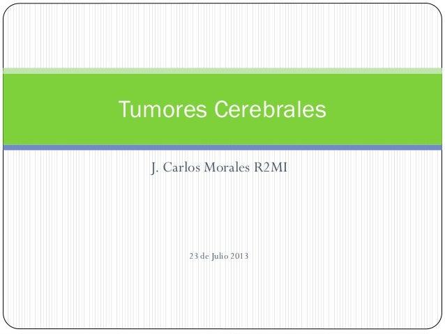 J. Carlos Morales R2MI 23 de Julio 2013 Tumores Cerebrales