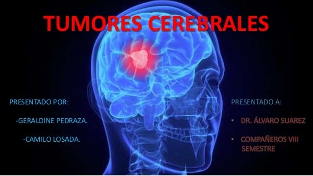 TUMORES CEREBRALES PRESENTADO POR: -GERALDINE PEDRAZA. -CAMILO LOSADA. PRESENTADO A: