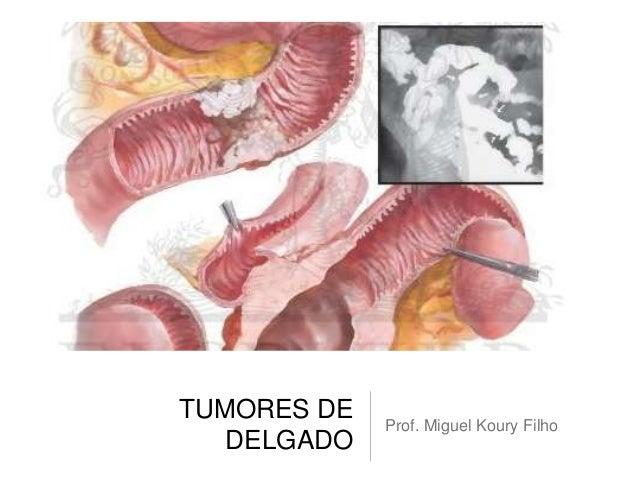 TUMORES DE DELGADO Prof. Miguel Koury Filho