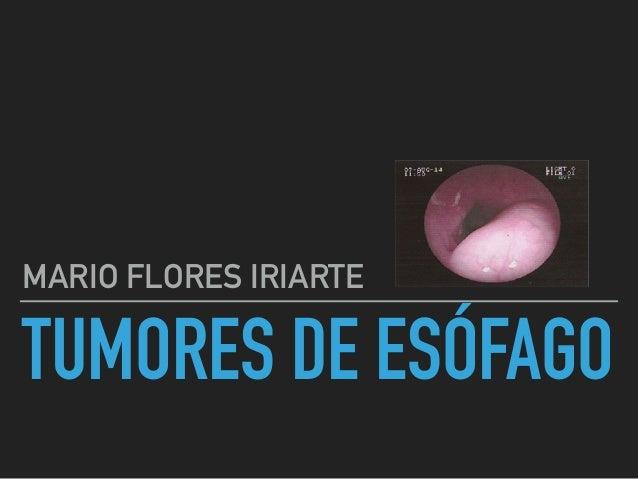 TUMORES DE ESÓFAGO MARIO FLORES IRIARTE