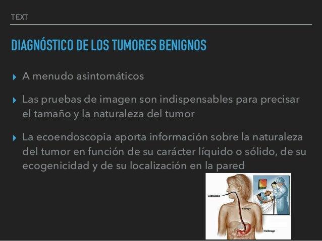 TEXT DIAGNÓSTICO DE LOS TUMORES BENIGNOS ▸ A menudo asintomáticos ▸ Las pruebas de imagen son indispensables para precisar...