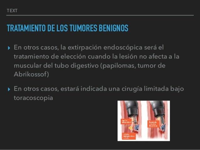 TEXT TRATAMIENTO DE LOS TUMORES BENIGNOS ▸ En otros casos, la extirpación endoscópica será el tratamiento de elección cuan...
