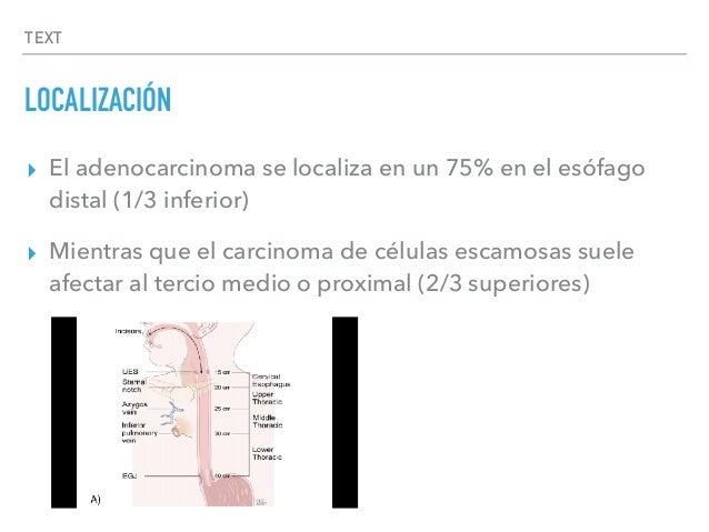TEXT LOCALIZACIÓN ▸ El adenocarcinoma se localiza en un 75% en el esófago distal (1/3 inferior) ▸ Mientras que el carcinom...