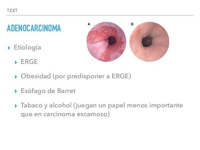 TEXT ADENOCARCINOMA ▸ Etiología ▸ ERGE ▸ Obesidad (por predisponer a ERGE) ▸ Esófago de Barret ▸ Tabaco y alcohol (juegan ...