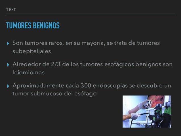 TEXT TUMORES BENIGNOS ▸ Son tumores raros, en su mayoría, se trata de tumores subepiteliales ▸ Alrededor de 2/3 de los tum...