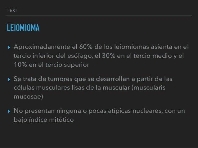 TEXT LEIOMIOMA ▸ Aproximadamente el 60% de los leiomiomas asienta en el tercio inferior del esófago, el 30% en el tercio m...