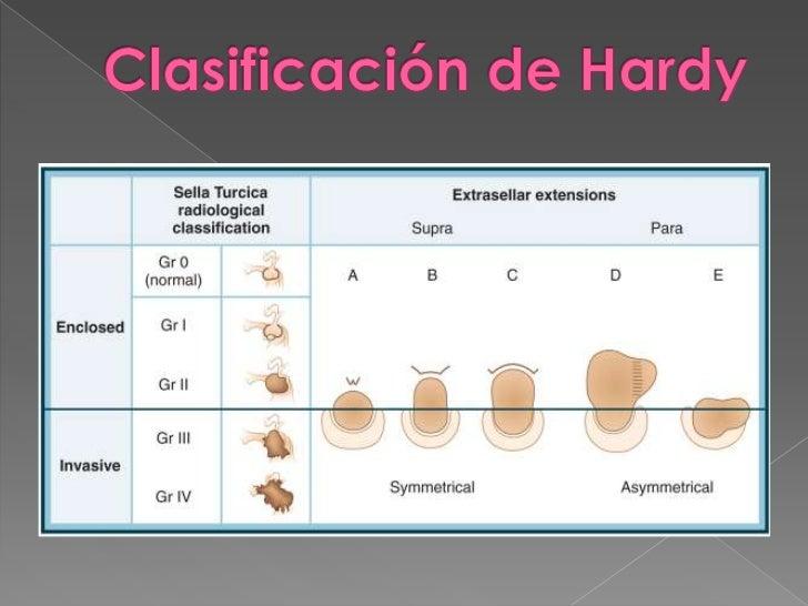 Neoplasia endocrina multiple