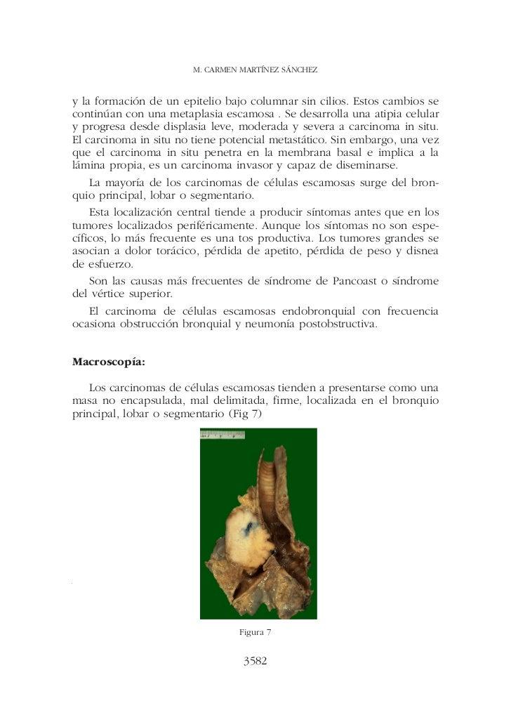 M. CARMEN MARTÍNEZ SÁNCHEZy la formación de un epitelio bajo columnar sin cilios. Estos cambios secontinúan con una metapl...