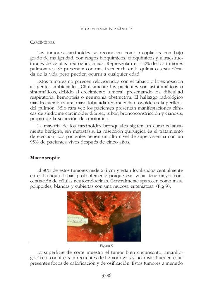 M. CARMEN MARTÍNEZ SÁNCHEZCARCINOIDES:    Los tumores carcinoides se reconocen como neoplasias con bajogrado de malignidad...