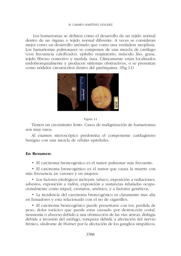 M. CARMEN MARTÍNEZ SÁNCHEZ     Los hamartomas se definen como el desarrollo de un tejido normaldentro de un órgano o tejid...